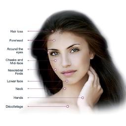 2550 - לקראת החגים: טיפולי אנטי אייג'ינג - טיפול הערפד לעור הפנים.