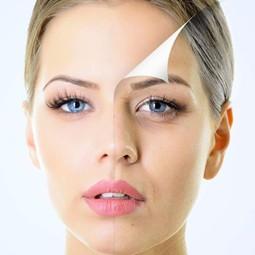 """3254 - עולם האסתטיקה הרפואית לא נח לרגע: """"אלנסה"""" - ELLANSE"""" הטיפול שיעשה פלאות לעור הפנים שלכם."""