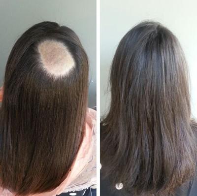 3611 - אדם סרור, בעל המותג ADAMSHAIR,  מסביר על השיטות והחידושים האחרונים בתוספות השיער.