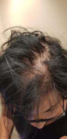 """הזרקת השיער 1 - """"היירסטטיקס"""", הפתרון להתקרחות גם בחלק הקדמי של הראש."""
