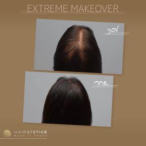 """לפני ואחרי טיפול הזרקת שיער היירסטטיקס ישראל - """"היירסטטיקס"""", הפתרון להתקרחות גם בחלק הקדמי של הראש."""